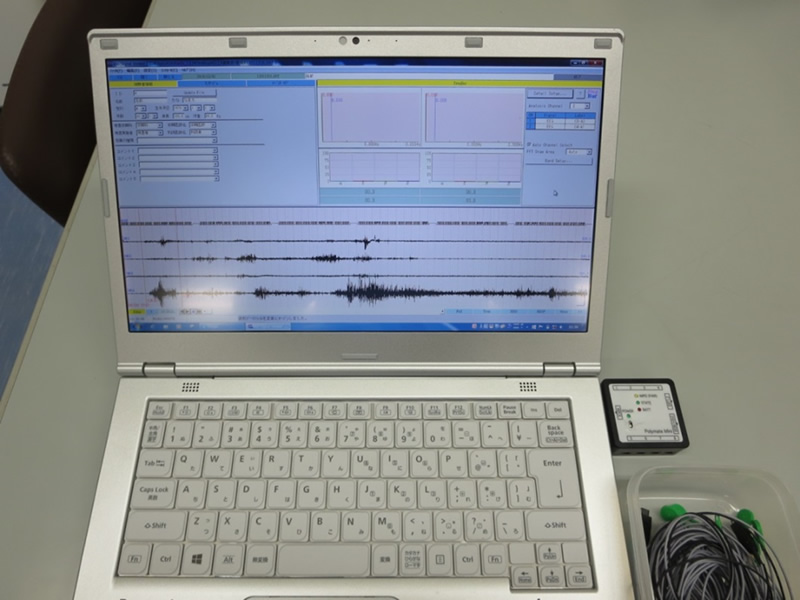 生体信号計測解析装置